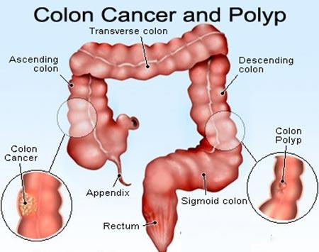 دانلود پاورپوینت سرطان روده بزرگ